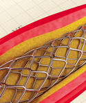 CME/CE: Real-World Evidence & Revascularization Trends for Patients With Diabetes & Severe Coronary Artery Disease